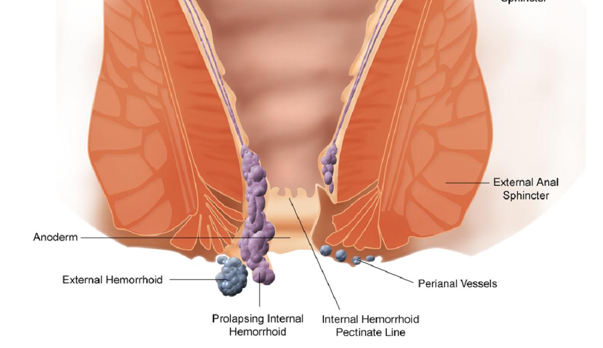 Emorroidi geparinovy o troksevazin - Trattamento di perossido di emorroidi
