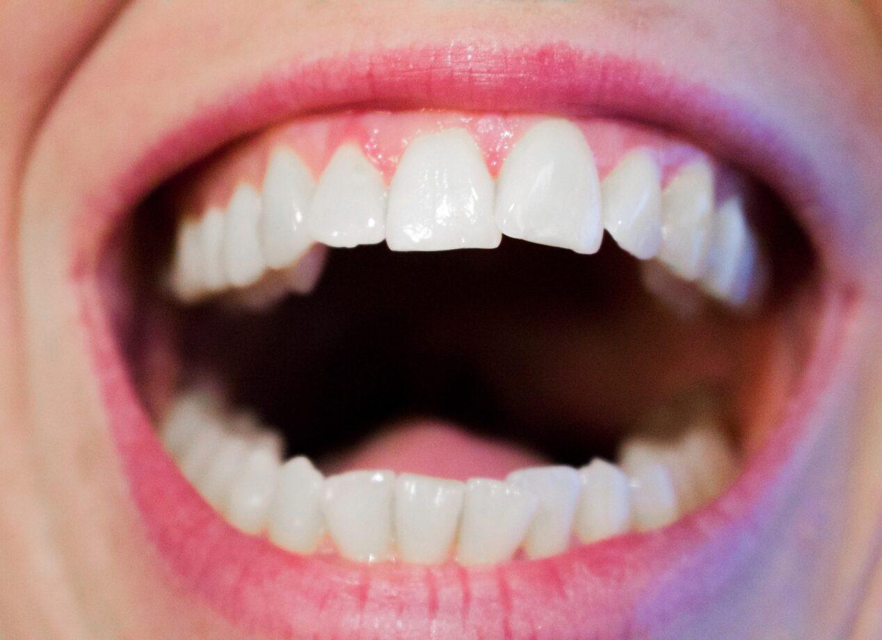 Allergia Rimedi Della Nonna come eliminare il bruciore alla lingua - rimedi molto efficaci.