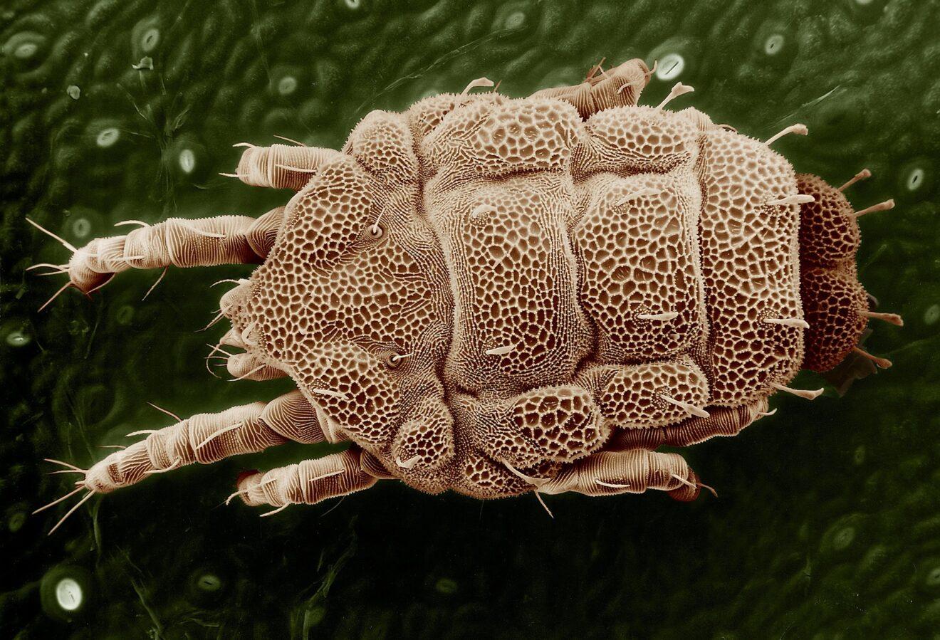 parassiti del tratto urinario umani
