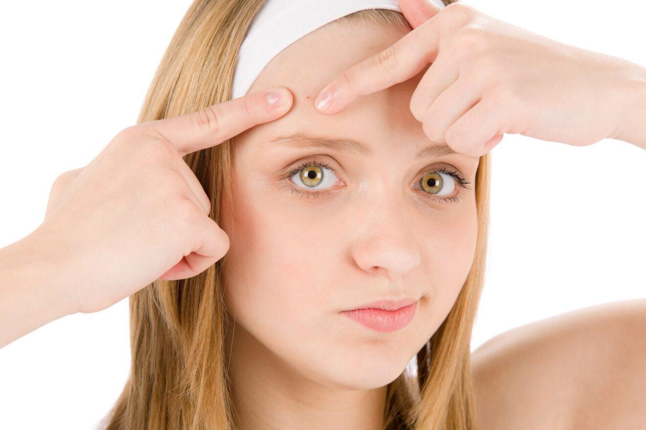 La patata è un ottimo rimedio naturale contro i segni dell acne de26bfbacf60
