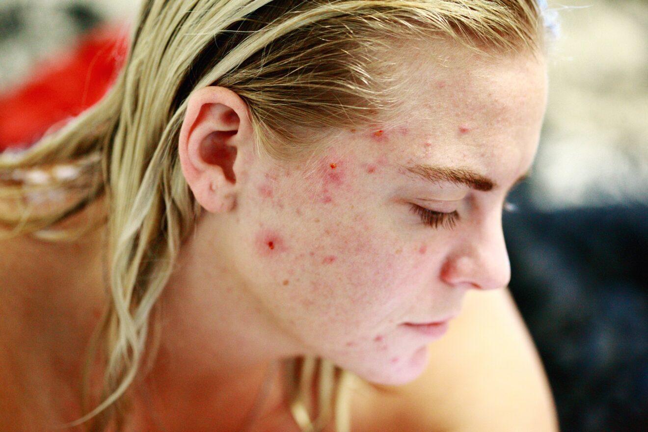 pulizia del viso punti neri naso