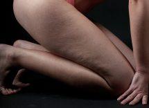 cellulite gambe